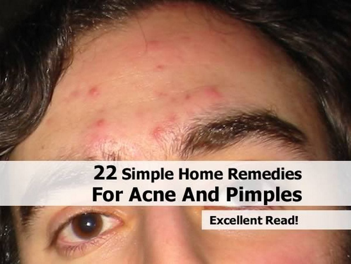 22 simple home remedies for acne and pimples