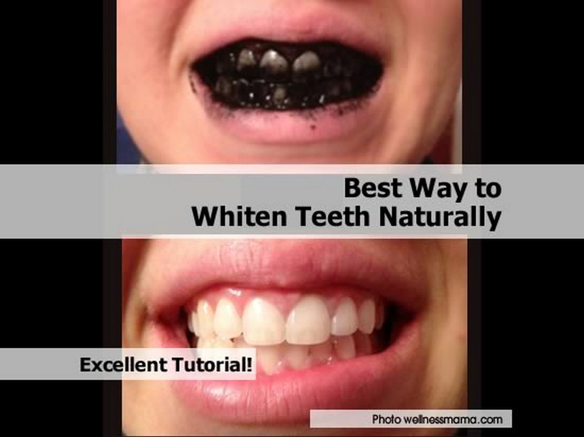 how-to-whiten-teeth-naturally-with-charcoal-1